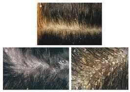 علاج طبيعي لقشرة الراس