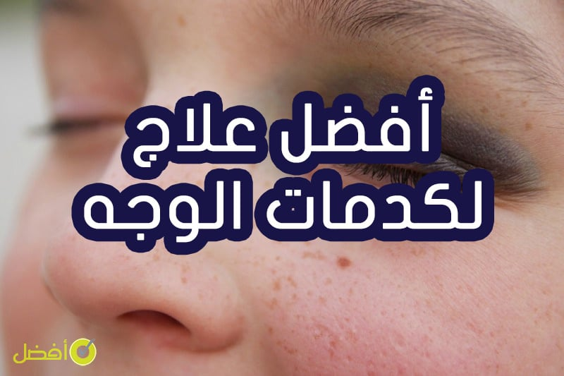 افضل علاج لكدمات الوجه