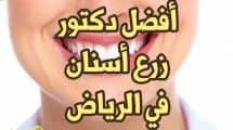 أفضل دكتور زرع أسنان في الرياض